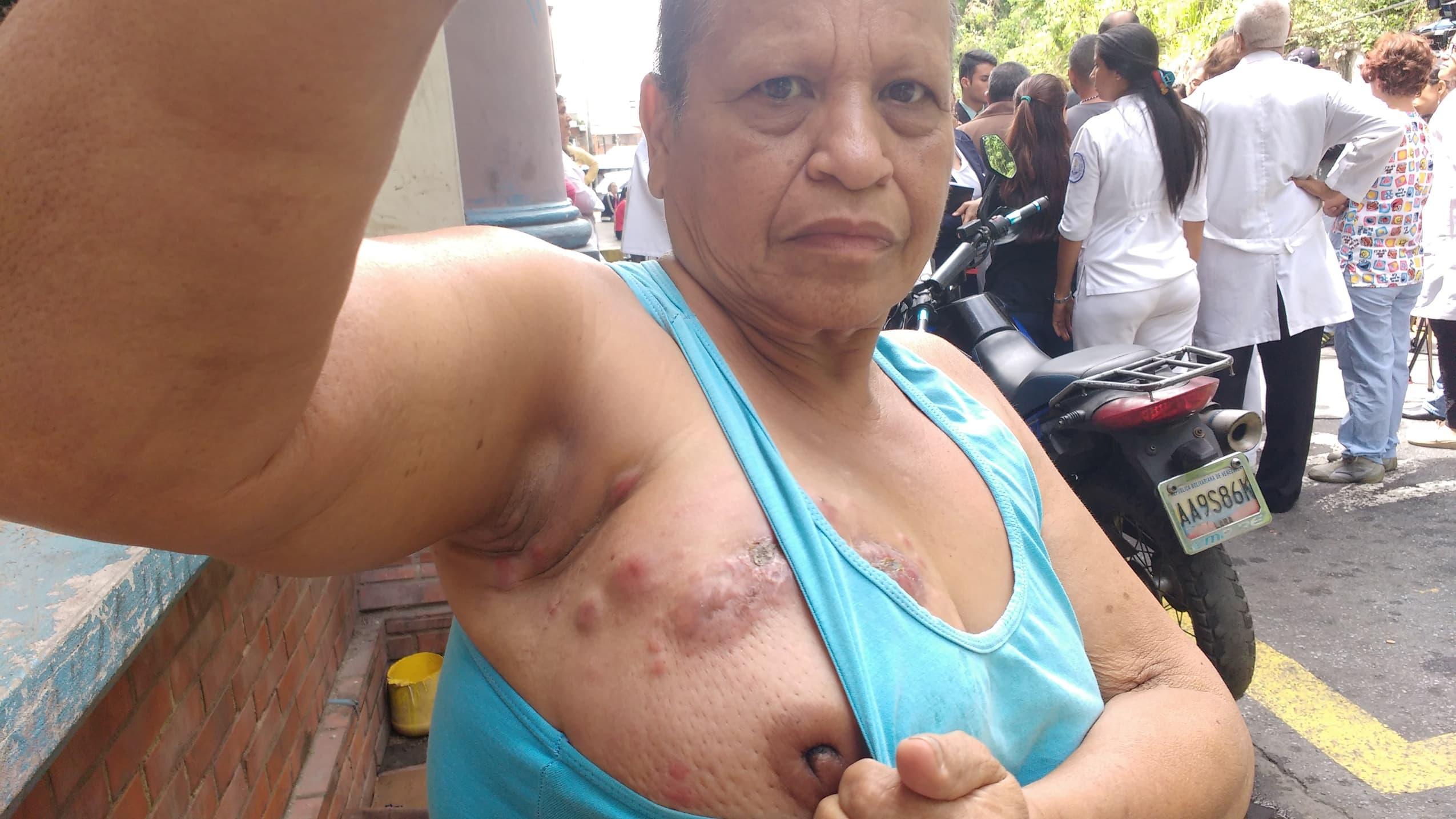 Más de un millardo de bolívares gastaron los hijos de Aura en su tratamiento de quimioterapia